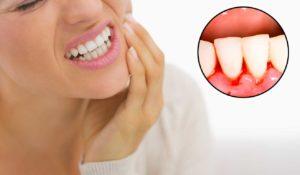 bleeding-gums